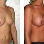 Frau vor der Brustvergrößerung und nach der Brustvergrößerung