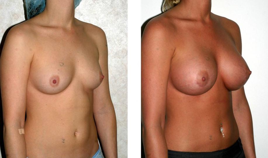 Warum hat die Plastik der Brust gemacht